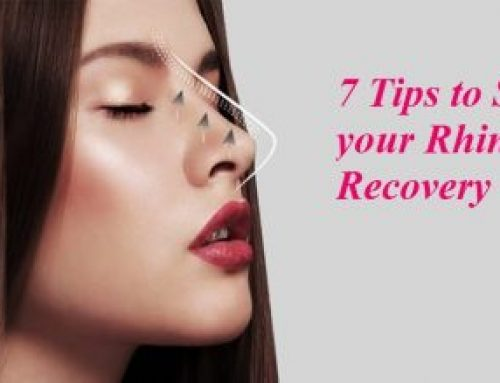 Top 7 Tips to speed up your Rhinoplasty recovery