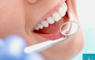 dental-composite-or-ceramic-laminate (1)