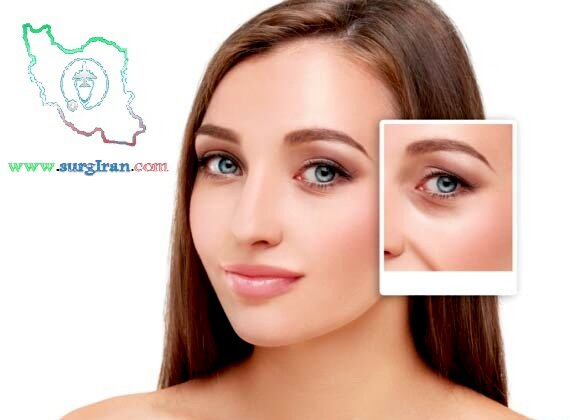 Eyelid_Surgery_in_Iran